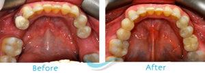 Dental Implants Glasgow